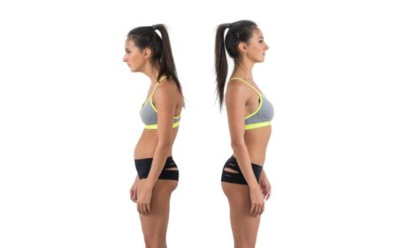 Chin Tuck Exercise - bad posture